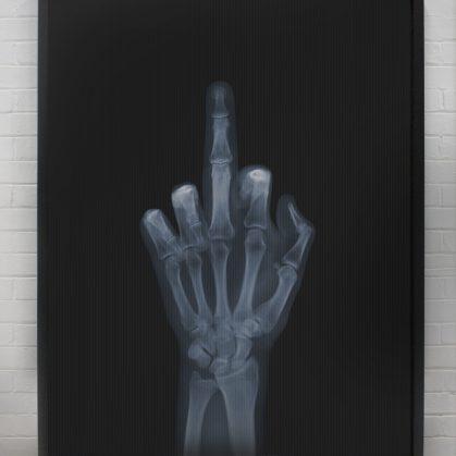 La galería de rayos X 20