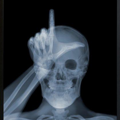 La galería de rayos X 17