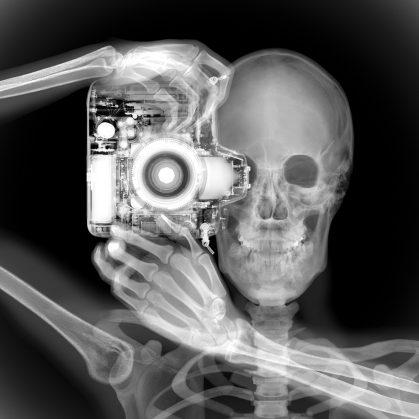La galería de rayos X 18
